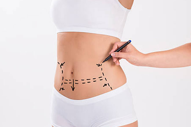 Body-Liposuction
