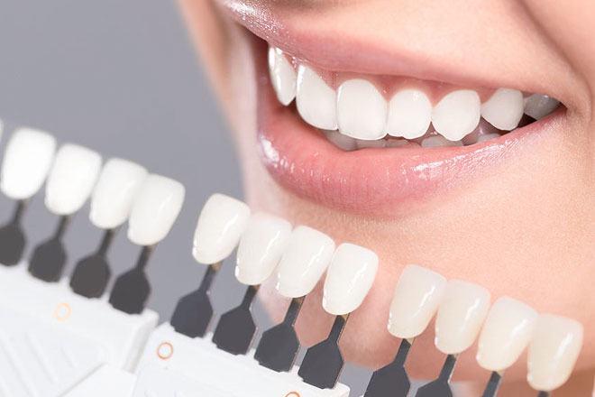 composite-dental-fillings